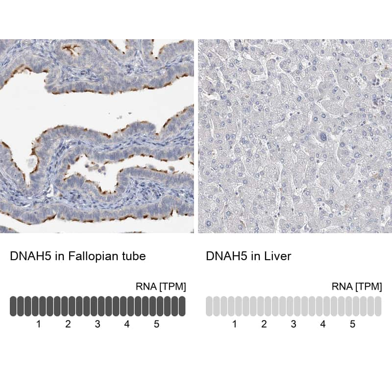 DNAH5 Antibody in Relative expression