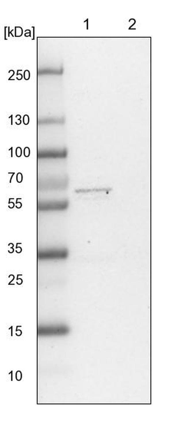 WDR37 Antibody in Western Blot (WB)