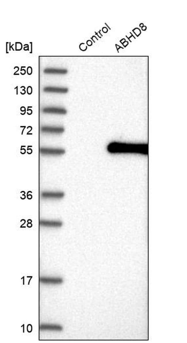 ABHD8 Antibody in Western Blot (WB)