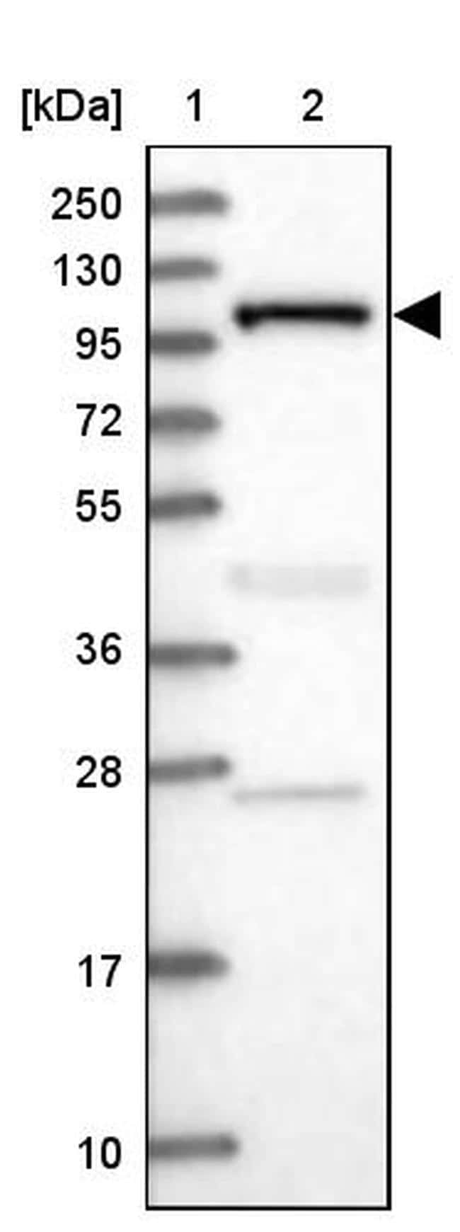 INPP4B Antibody in Western Blot (WB)