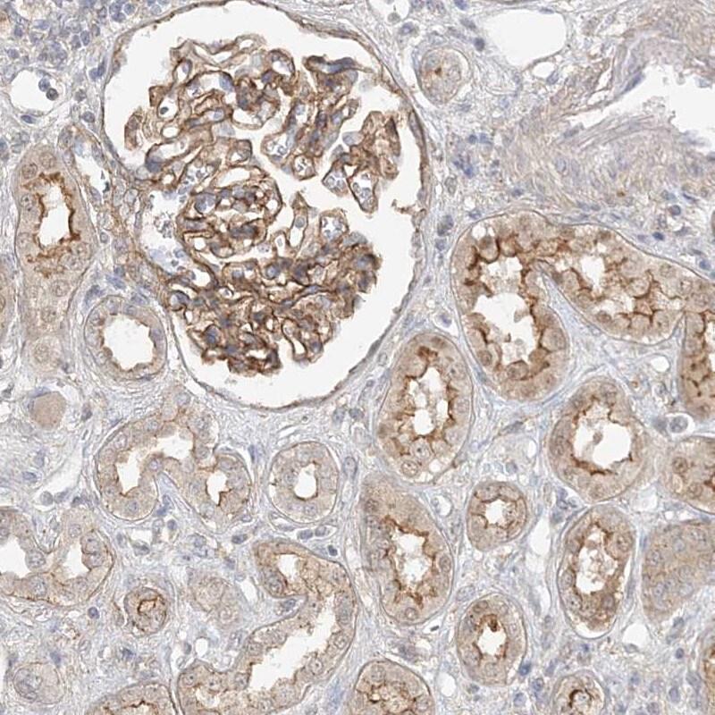 MAT2B Antibody in Immunohistochemistry (IHC)