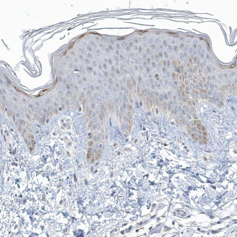 Myotilin Antibody in Immunohistochemistry (IHC)