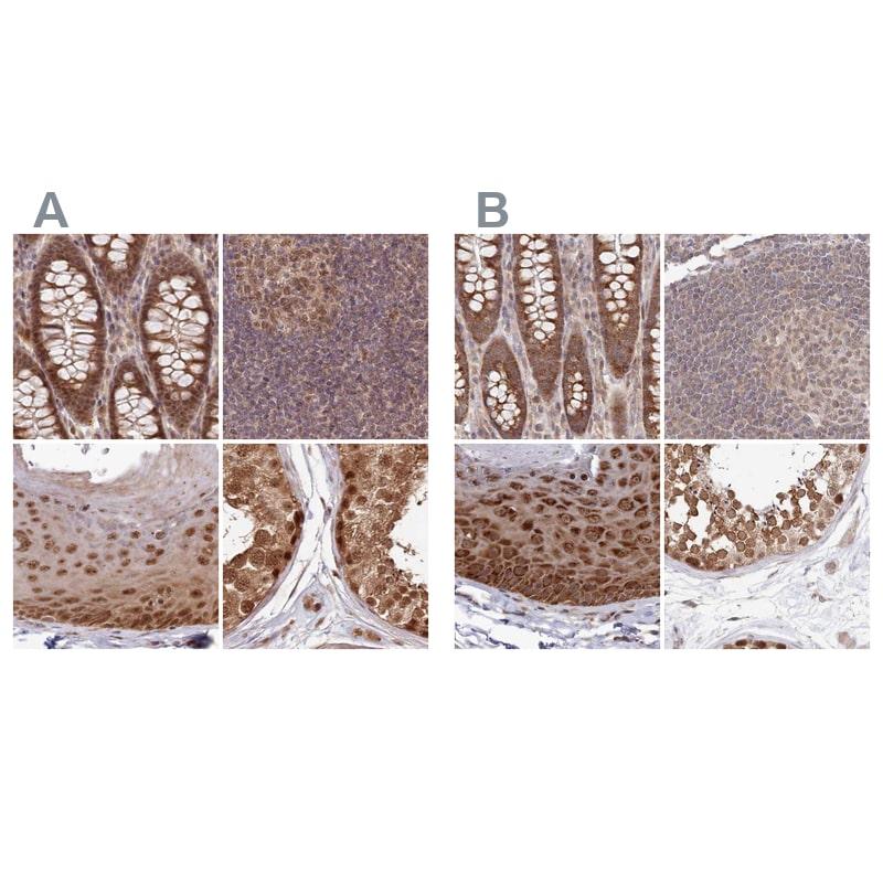 WAPL Antibody in Immunohistochemistry (IHC)