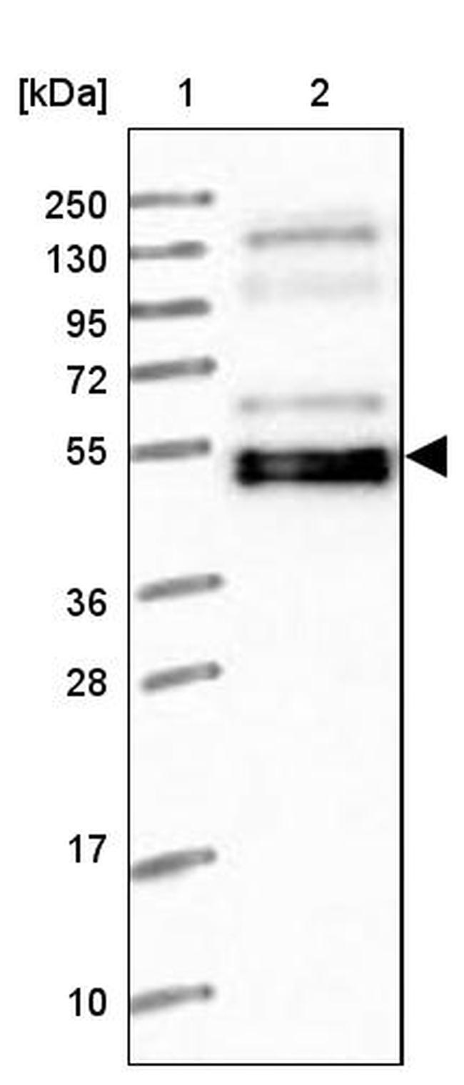 WAPL Antibody in Western Blot (WB)