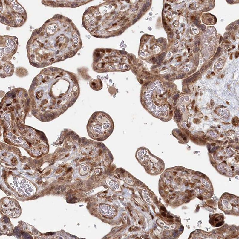 POLR3A Antibody in Immunohistochemistry (IHC)