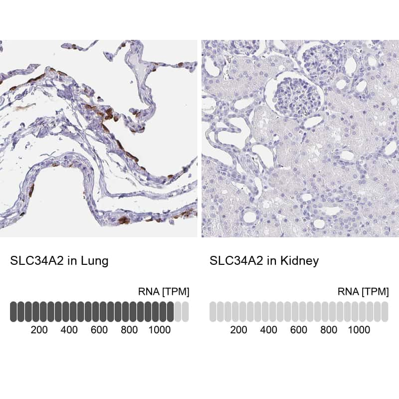 SLC34A2 Antibody in Relative expression