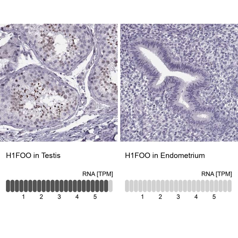 H1FOO Antibody in Relative expression