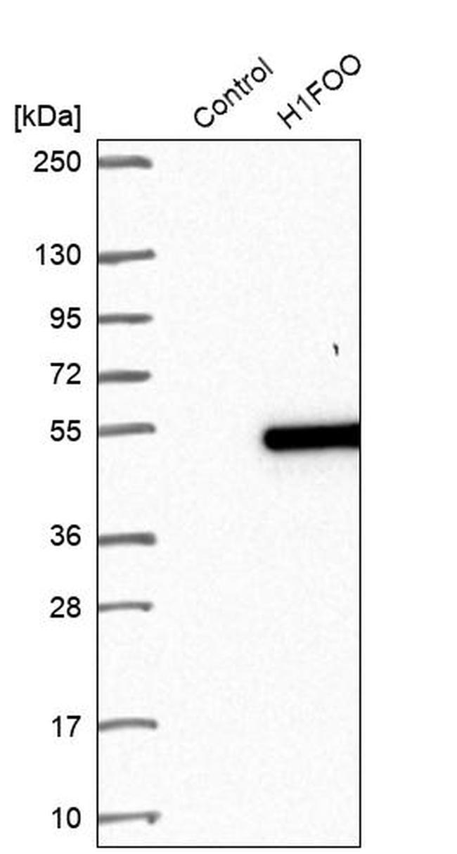 H1FOO Antibody in Western Blot (WB)