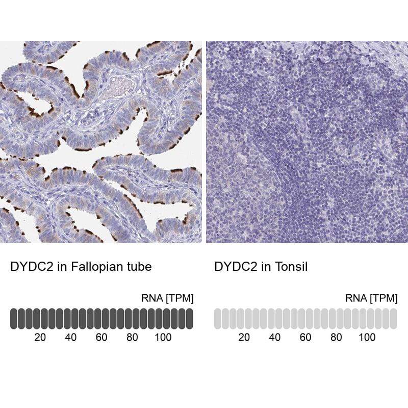 DYDC2 Antibody in Relative expression