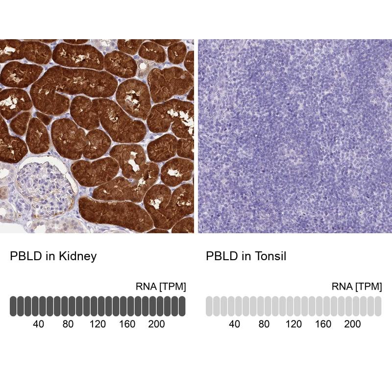 PBLD Antibody in Relative expression