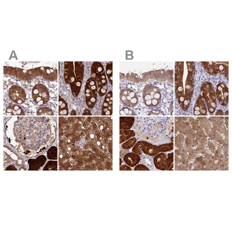 PBLD Antibody in Immunohistochemistry (IHC)