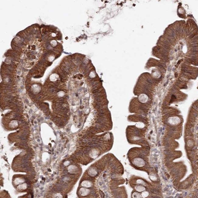ATRNL1 Antibody in Immunohistochemistry (IHC)