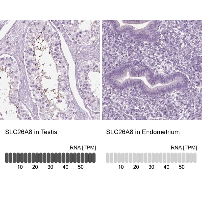 SLC26A8 Antibody in Relative expression