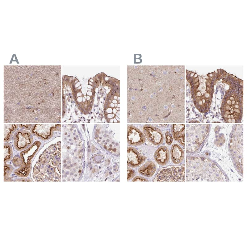 HIP1R Antibody in Immunohistochemistry (IHC)
