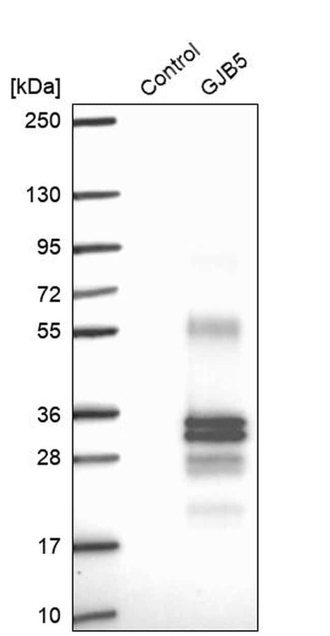 Connexin 31.1 Antibody in Western Blot (WB)