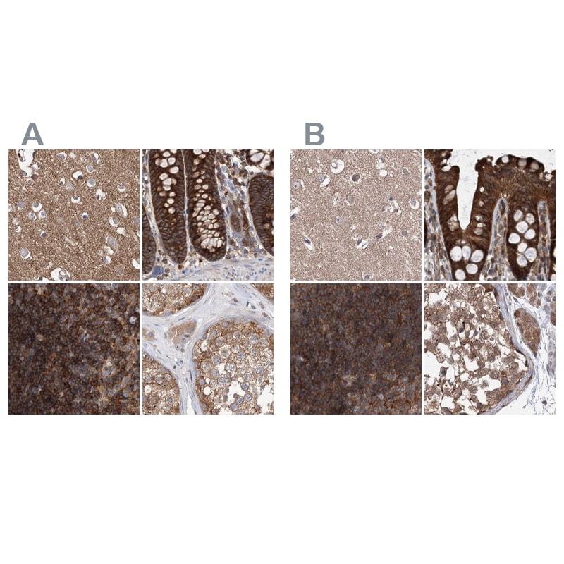 VPS37B Antibody in Immunohistochemistry (IHC)