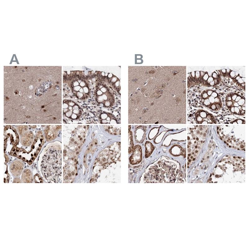 BUD13 Antibody in Immunohistochemistry (IHC)