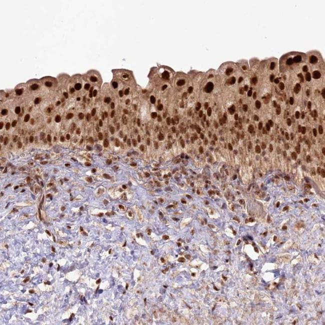 Cerebral Protein 1 Antibody in Immunohistochemistry (IHC)