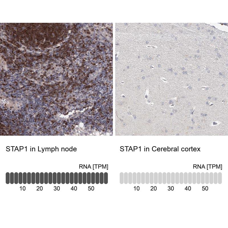 STAP1 Antibody in Immunohistochemistry (IHC)