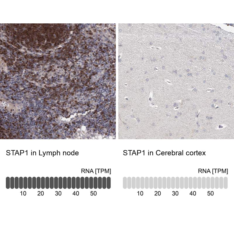 STAP1 Antibody in Relative expression