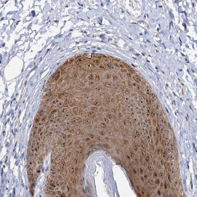 C2CD3 Antibody in Immunohistochemistry (IHC)