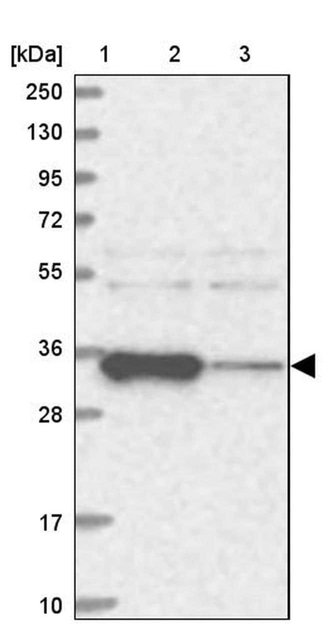 ACTR6 Antibody in Western Blot (WB)