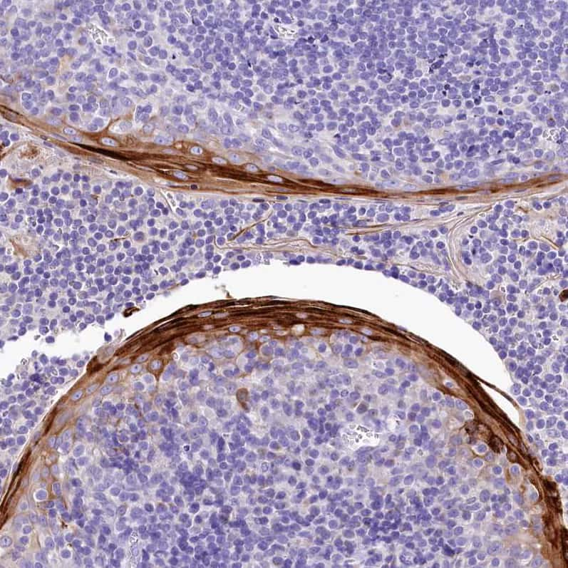 A2ML1 Antibody in Immunohistochemistry (IHC)
