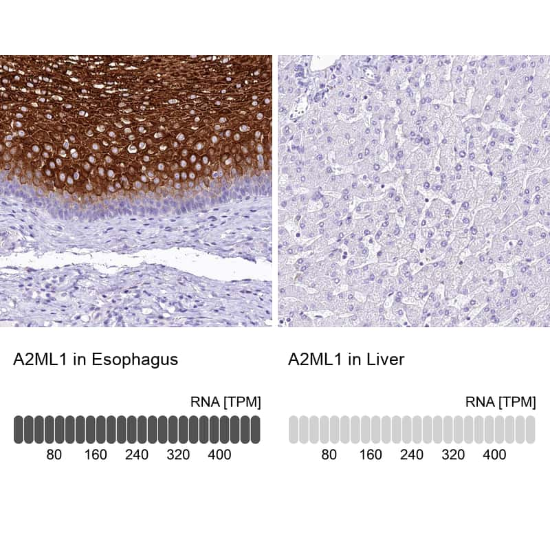 A2ML1 Antibody in Relative expression