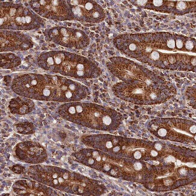 NUDT15 Antibody in Immunohistochemistry (IHC)