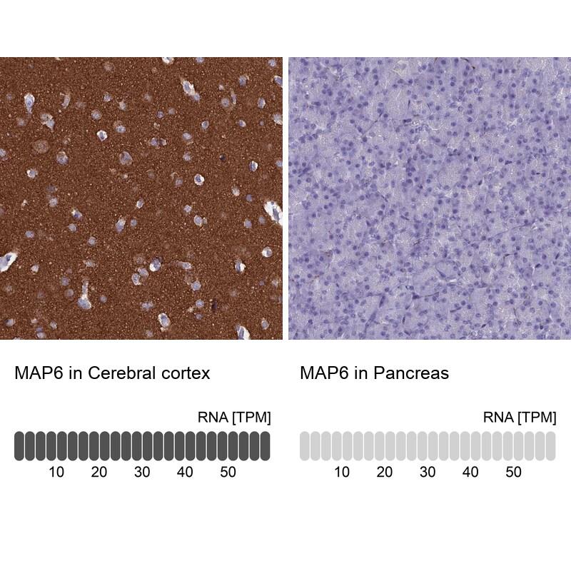 MAP6 Antibody in Immunohistochemistry (IHC)