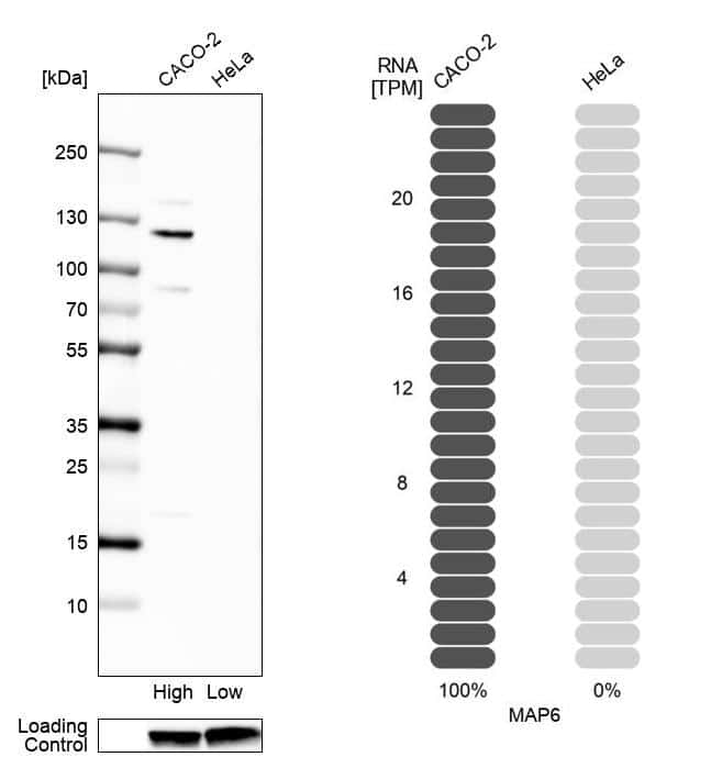 MAP6 Antibody in Relative expression