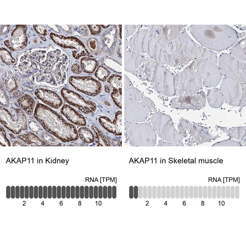 AKAP11 Antibody in Relative expression