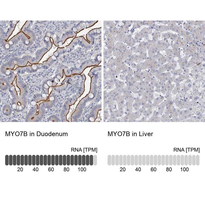MYO7B Antibody in Immunohistochemistry (IHC)