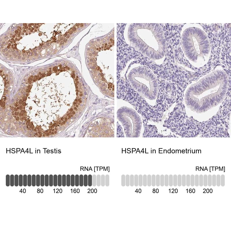 HSPA4L Antibody in Relative expression