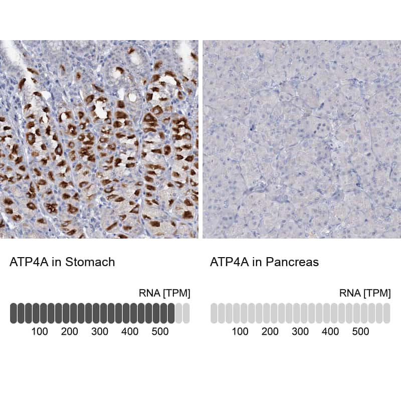 ATP4A Antibody in Relative expression