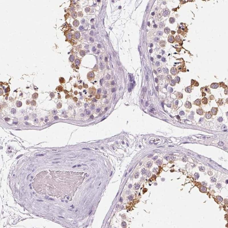 ROPN1L Antibody in Immunohistochemistry (IHC)