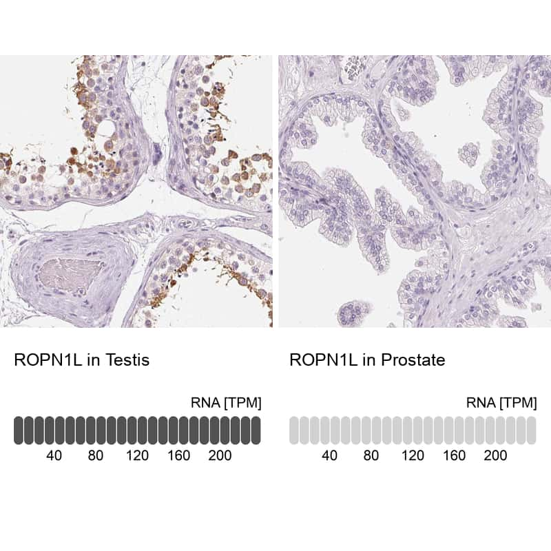 ROPN1L Antibody in Relative expression