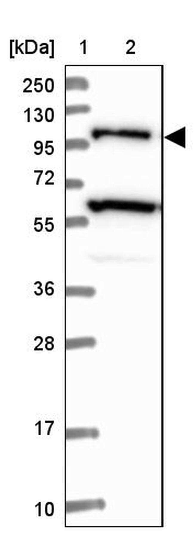 USP6NL Antibody in Western Blot (WB)