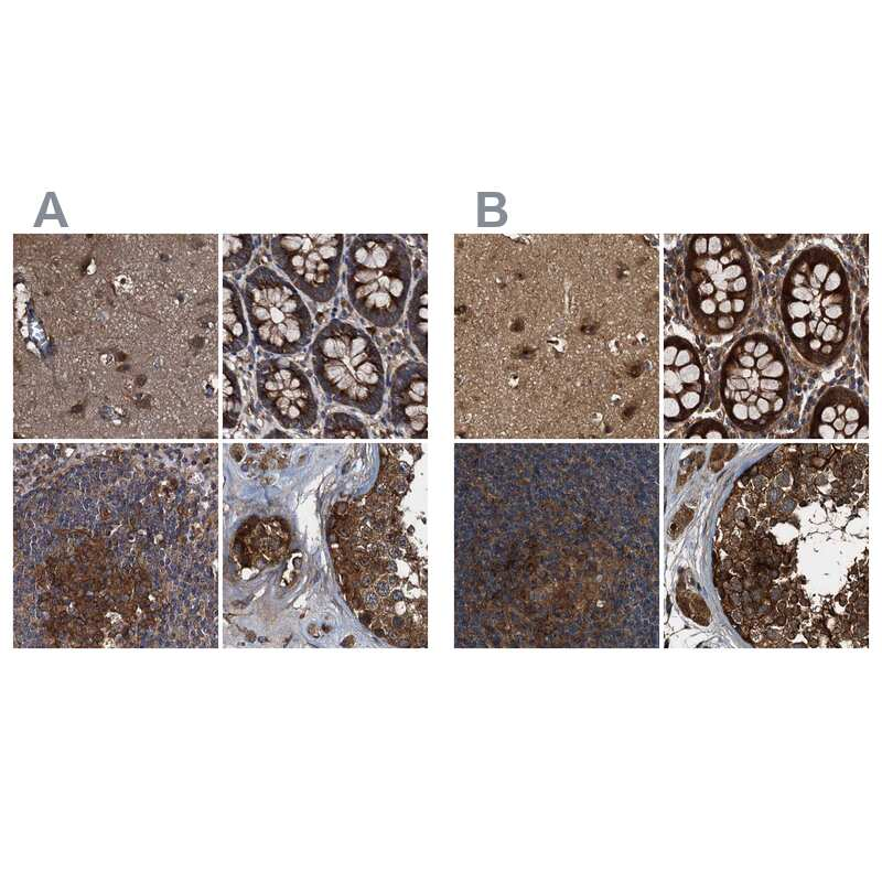 PEX5 Antibody in Immunohistochemistry (IHC)