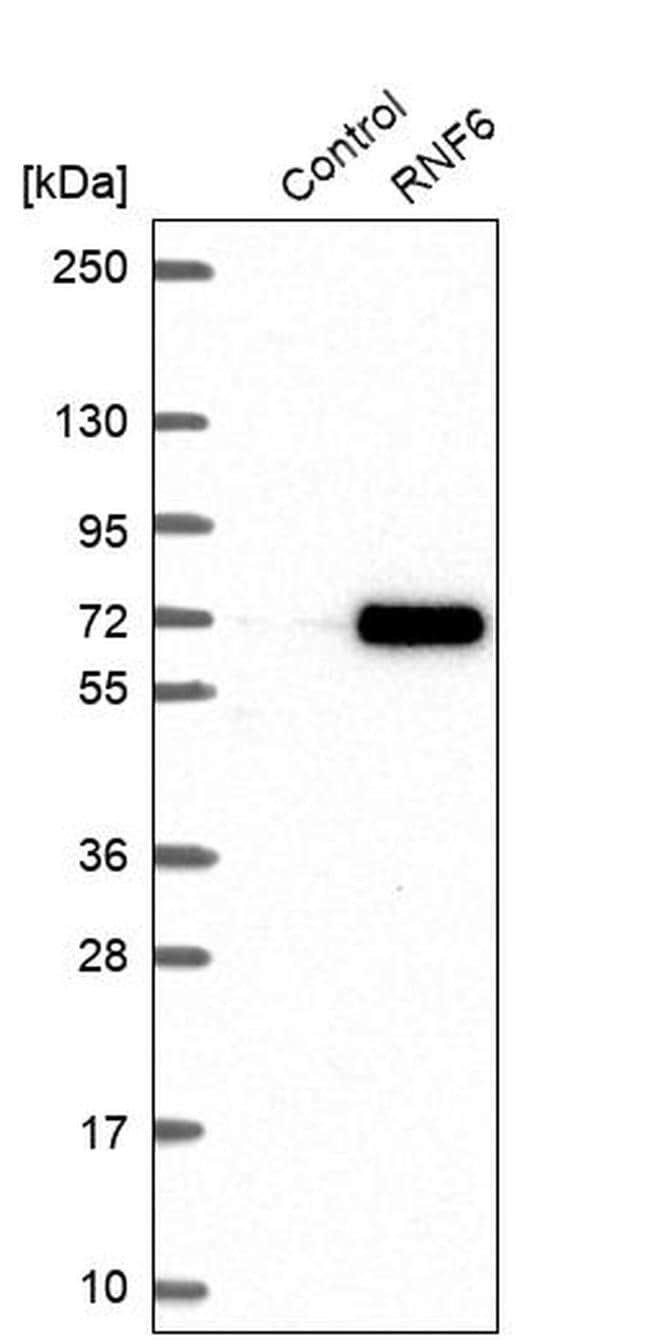 RNF6 Antibody in Western Blot (WB)