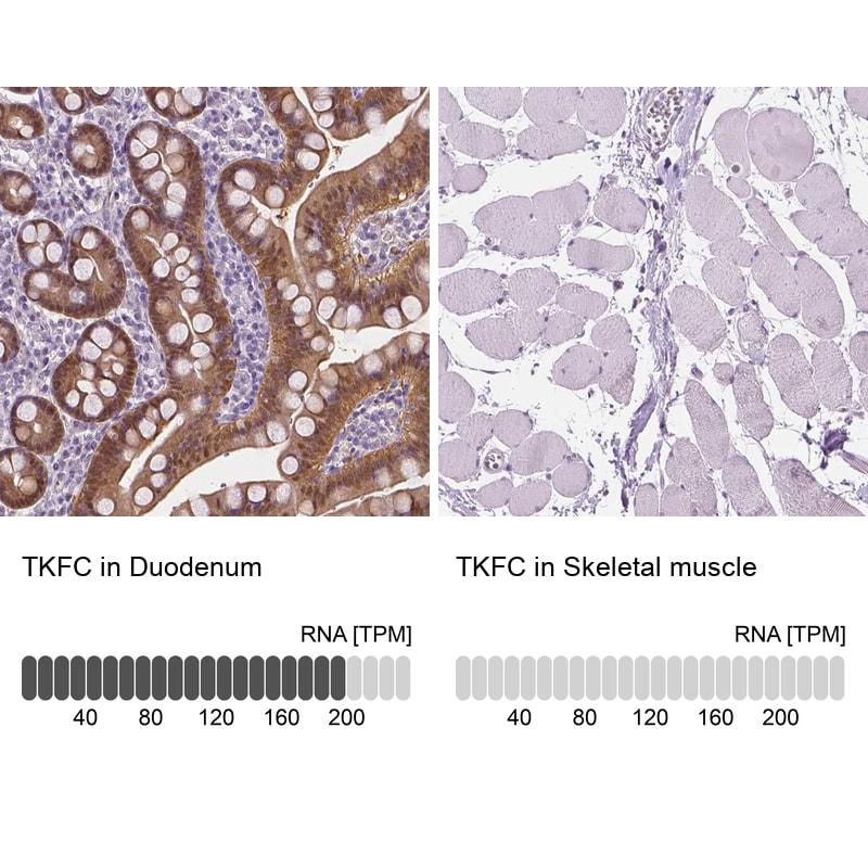 DAK Antibody in Relative expression