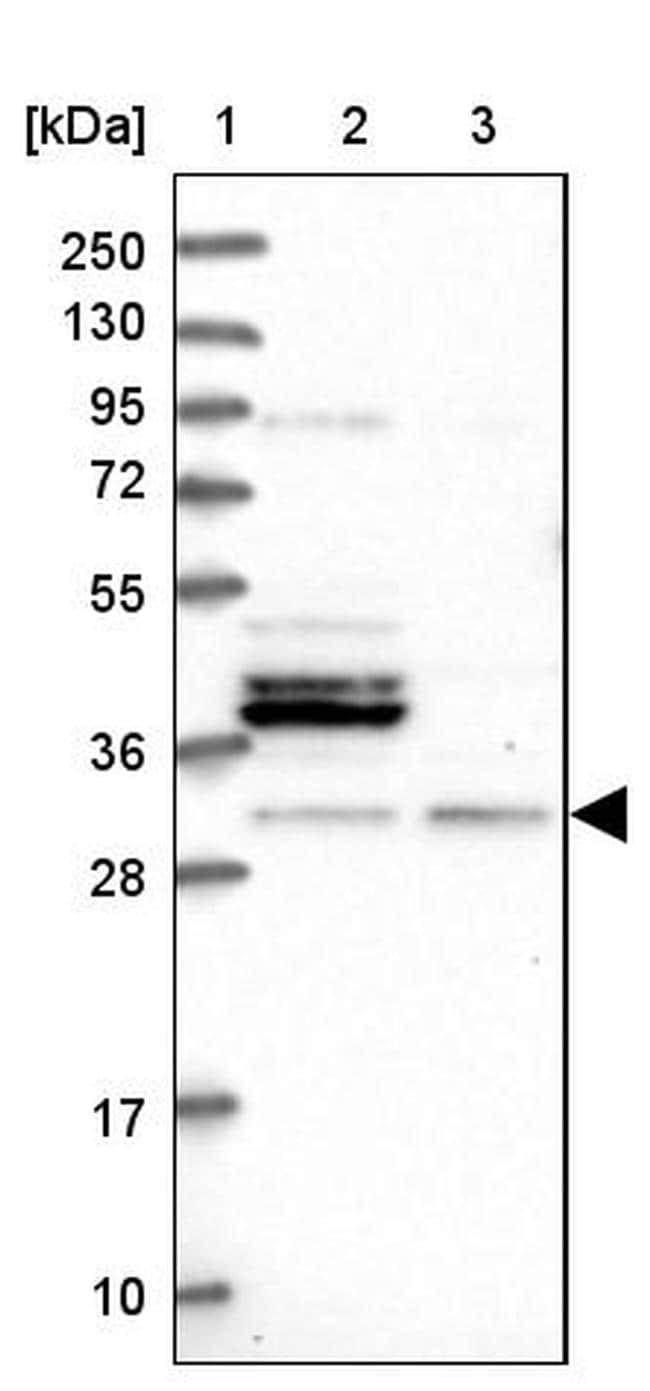 FUS2 Antibody in Western Blot (WB)