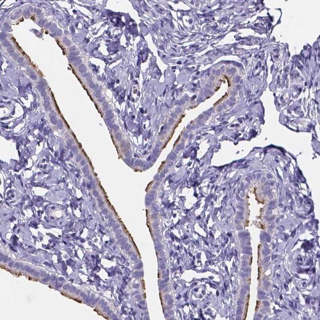 SPEF2 Antibody in Immunohistochemistry (IHC)