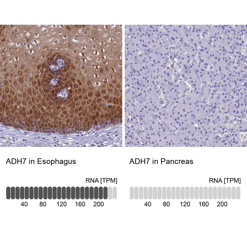 ADH7 Antibody in Relative expression