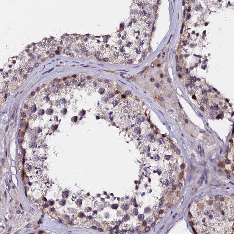 GPN3 Antibody in Immunohistochemistry (IHC)