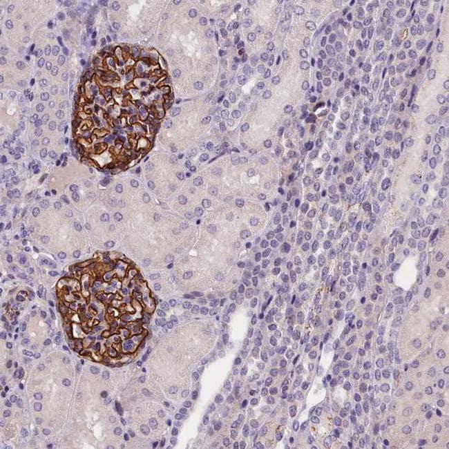KLHL35 Antibody in Immunohistochemistry (IHC)