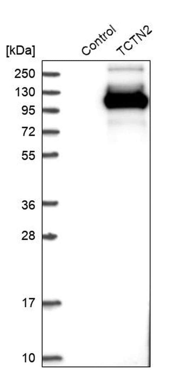 TCTN2 Antibody in Western Blot (WB)