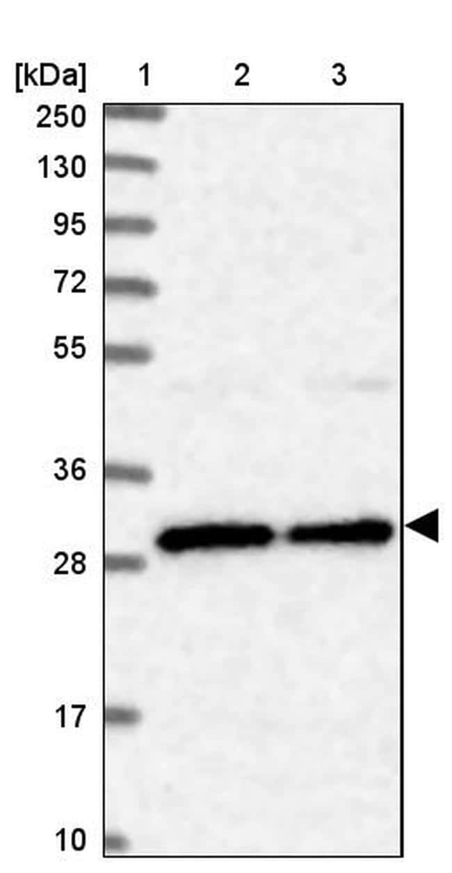 BCDIN3D Antibody in Western Blot (WB)