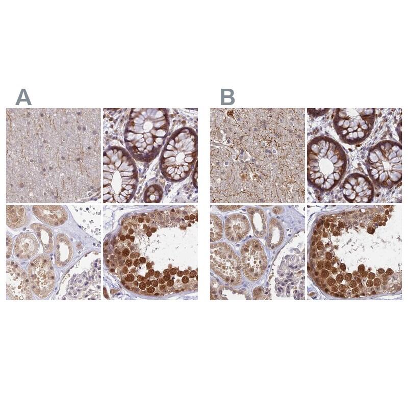 WDR61 Antibody in Immunohistochemistry (IHC)