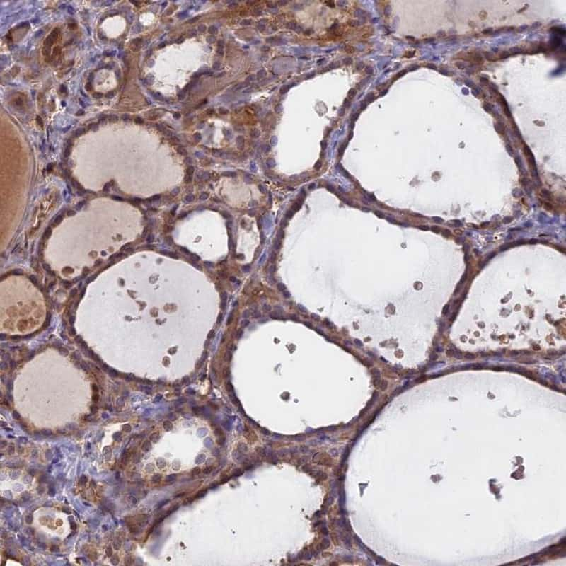 UFSP2 Antibody in Immunohistochemistry (IHC)